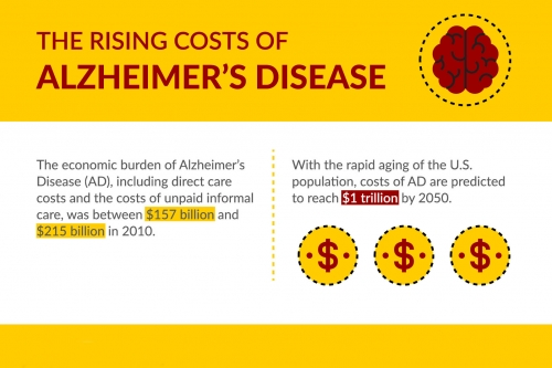Alzheimers infographic